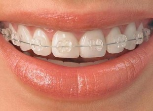Top 4 motive pentru a purta aparat dentar