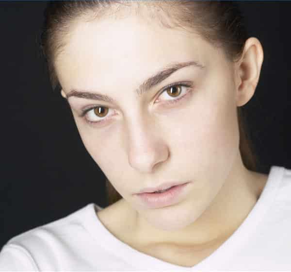 6-symptomes-dune-carence-vitamines-peuvent-se-manifester-visage1